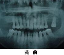 CT写真をシンプラントのソフトで処理した画像